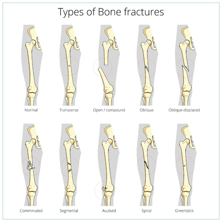 Types of bone fractures medical skeleton anatomy educational vector illustration. Medical science Ilustração