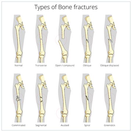 fractures: Types of bone fractures medical skeleton anatomy educational vector illustration. Medical science Illustration
