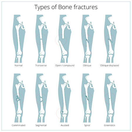 fractures: Types of bone fractures medical skeleton anatomy educational vector illustration. Medical science Stock Photo