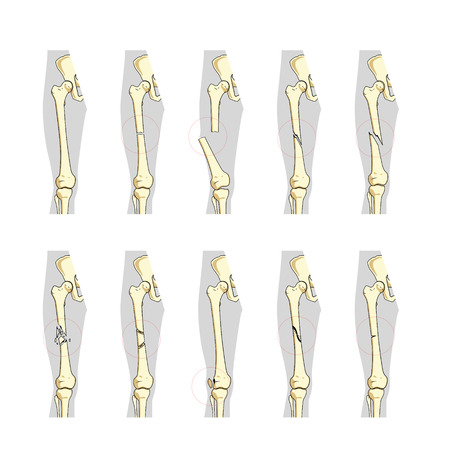 Types of bone fractures medical skeleton anatomy educational vector illustration. Medical science Иллюстрация