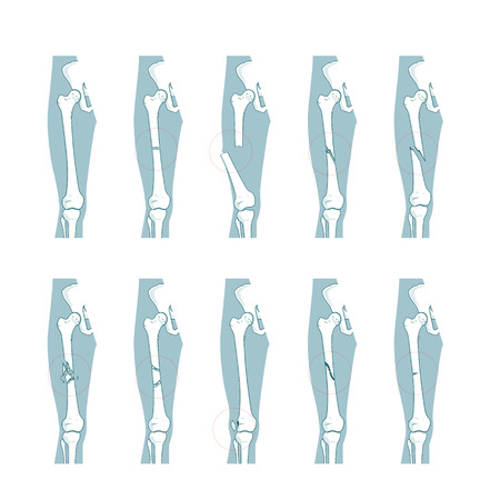 broken strategy: Types of bone fractures medical skeleton anatomy educational vector illustration. Medical science Illustration