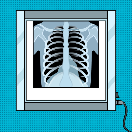 Xray image of chest in negative observer pop art retro vector illustration. Color background. Comic book style imitation.