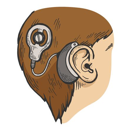 Cochlear implant on child head color sketch engraving vector illustration. Scratch board style imitation. Black and white hand drawn image.