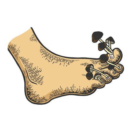 Nail fungus disease mushrooms metaphor sketch engraving vector illustration. Tee shirt apparel print design.