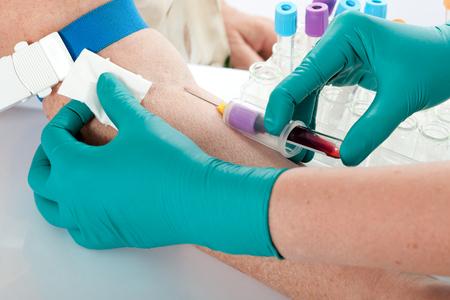 tubo de ensayo: Enfermera extrae una muestra de sangre para una prueba m�dica Foto de archivo