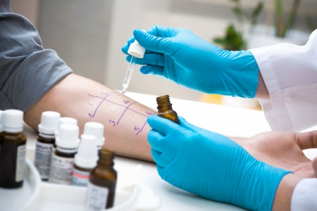 Hautpickelallergie, um eine Art Allergie herauszufinden Standard-Bild