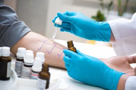 Skin prik allergie te weten te komen soort van allergie Stockfoto