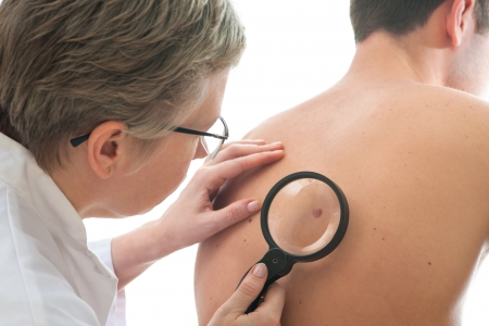 dermatologo: Dermatologo esamina una mole di paziente di sesso maschile