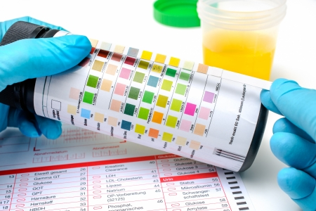 test result: Medical exam   Hands with  the urine test strip Stock Photo