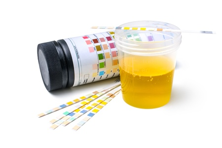 Medisch examen De urinetest strips Stockfoto