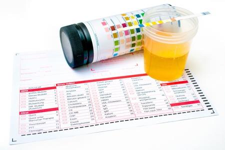 검진 의료 보고서 및 소변 테스트 스트립 스톡 콘텐츠