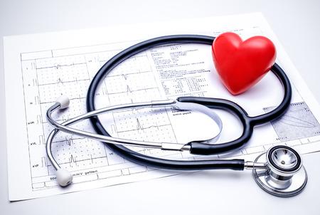 Stethoskop mit einem roten Herzen auf der Spitze des EKG-Chart Standard-Bild - 23579112