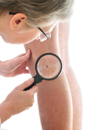 Dermatologist examines a mole of male patient photo