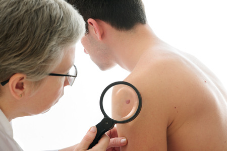 birth control: Dermatologist examines a mole of male patient