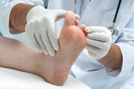 �athletes: M�dico dermat�logo examina el pie en la presencia de pie de atleta