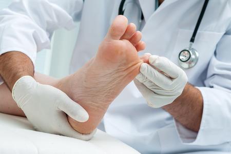 Arts dermatoloog onderzoekt de voet op de aanwezigheid van voetschimmel