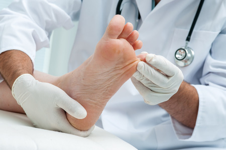 pieds sales: Docteur dermatologue examine le pied sur la pr�sence d'athl�tes pied Banque d'images
