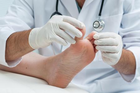 Arts dermatoloog onderzoekt de voet op de aanwezigheid van atleten voet