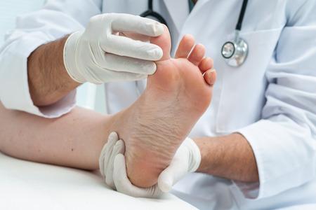 doctor: M�dico dermat�logo examina el pie en la presencia de pie de atleta