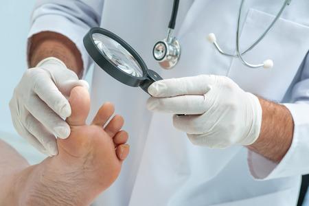 Arzt Hautarzt untersucht den Fuß auf das Vorhandensein von Fußpilz