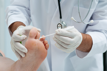 Doctor dermatologist examines the foot on the presence of athletes foot