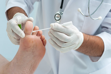 Doctor dermatologist examines the foot on the presence of athlete�s foot photo