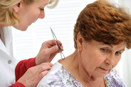 Doctor removing a tick with  tweezers from skin of patient photo