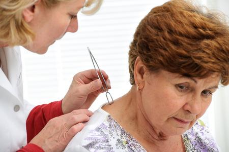 tick: M�dico eliminar una garrapata de la piel con pinzas de paciente Foto de archivo