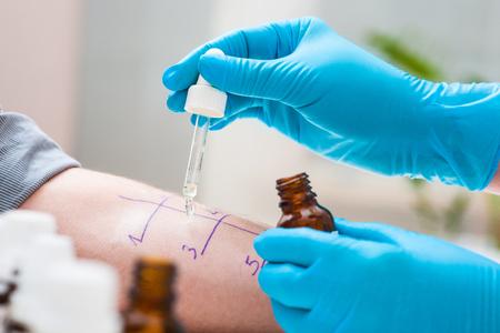 laboratorio clinico: Piel pinchar prueba de alergia para saber tipo de alergia Foto de archivo