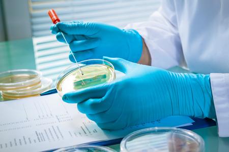in lab: Los g�rmenes que crecen en una placa de agar en laboratorio