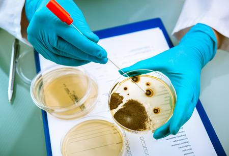 microbiologia: Los gérmenes que crecen en una placa de agar en laboratorio