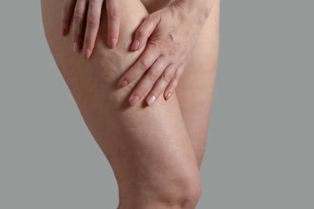 stretch marks, cellulite and varicose veins on a woman's legs Stock Photo