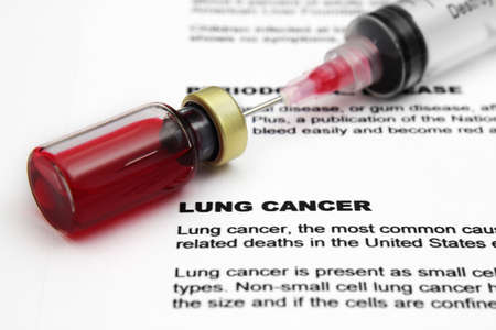 Lung cancer Stock Photo - 15627862