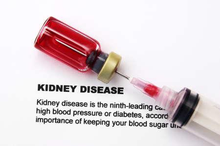Kidney disease photo