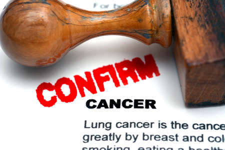 radiotherapy: Cancer confirm
