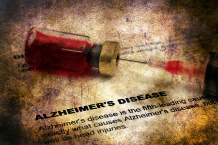 aging brain: Alzheimer disease grunge concept Stock Photo