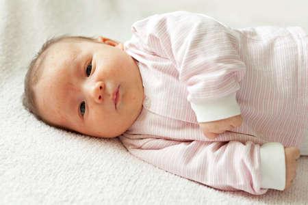 rash: Retrato de un beb� reci�n nacido primer plano. En la cara del beb� erupci�n, acn� neonatal