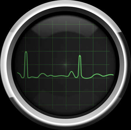 The cardiogram on the screen of a retro cardiomonitor in green tones, background photo