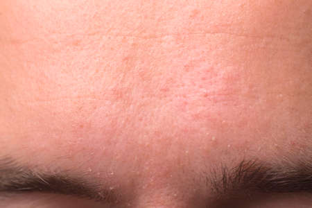 weeping eczema in the stage of exudation. Closeup of forehead area with eczema rash clinic 版權商用圖片