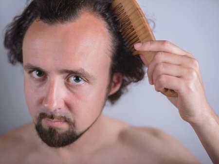 Portrait of a young guy with magnificent hair that falls early on his forehead. The problem of premature aging. Combing hair and indignantly looking in the mirror. Genetic predisposition to hair loss in men. Diseases of the scalp. Testosterone-dependent hair loss problems in men