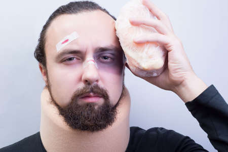 Closeup portrait of a young guy with bruises on his face, with a neck injury. Ice puts a frozen piece on his head, moans. Stock Photo