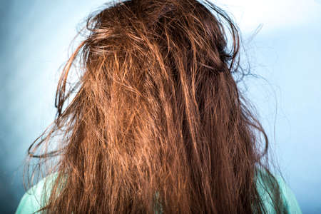 portrait of a girl with dirty, greasy, disheveled hair and problematic scalp. On a blue background. Dermatological hair disease, dandruff, seborrheic dermatitis, eczema, oily hair. Bad hair shampoo. 版權商用圖片