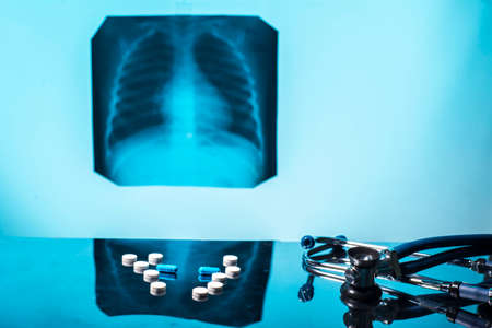Tuberculosis treatment concept. X-ray of the lungs, with pathology, phonendoscope with pills on the table. Lung disease. Pneumonia. Medical flatley, pills and x-ray image, with phonendoscope, on a blue background. The treatment of bronchitis. Chemotherapy