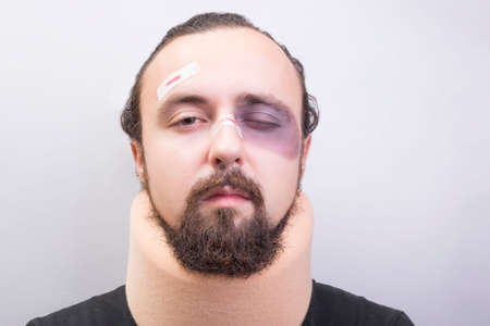 Closeup portrait of a young guy with bruises on his face, with a neck injury. The collar is placed in the neck to immobilize the cervical vertebrae. Damage to the bones of the spine, cervical osteochondrosis. Car accident. Falling from height. A common neck injury. Neck disease