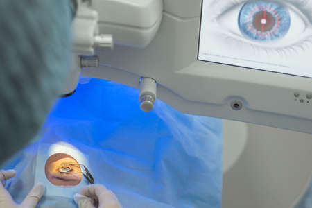 Doctor ophthalmologist, pressing the button on the control display to start a modern laser for the correction of visual impairment. Laser eye microsurgery. Treatment of cataracts, myopia, anisocoria, astigmatism, myopia, strabismus in patients using modern equipment Stockfoto