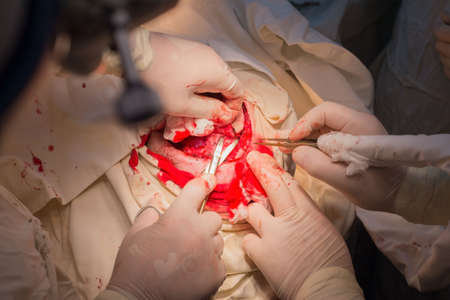 top view, stages of neurosurgical surgery for installing a titanium plate in the patients skull. Pediatric neurosurgery. Craniotomy. Incision of the scalp. Stop bleeding of the head using an electrocoagulator. Hemostatic clamp on scalp of scalp. tweezers assist the surgeon.