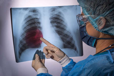 Portrait of a womans doctor, in a protective medical surgical suit, holding an X ray of the lungs with pathology in her hands, pointing to the pathology with her finger, looking at the camera. Studio portrait on a white background. Medicine, treatment of lung pathology, including pneumonia, caused by coronavirus infection. Pulmonary disease, chronic obstructive pulmonary disease, respiratory tract infection. Diagnosis of the lung, x ray of the lungs of patients, the doctor investigates. Particularly dangerous lung infections Banco de Imagens