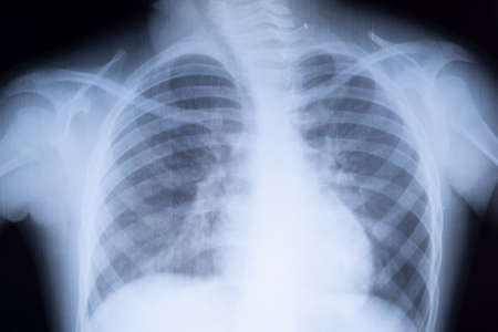 x-ray of the lungs of a teenager. Lung pathology. front x-ray of a child's chest