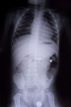 X-ray of a child with a foreign body battery in the gastrointestinal tract X-ray film, coins found in the stomach of a 3 year old child - white, black. Stock fotó