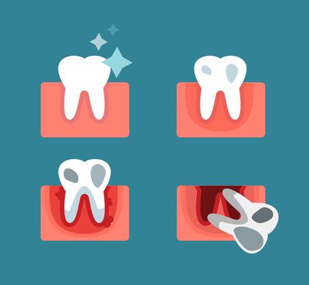 Parodontitis podium stappen vector illustratie. Tandheelkundige tand problemen vector concept. Kiespijn, tand dood, slechte tand zorg. Artsen tandartsen professionele afbeelding. Medische tandheelkundige tand ziekte, orale problemen
